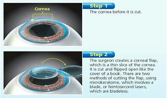 LASIK Procedures
