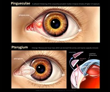 Pterygium and Pinguecula